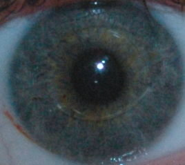My eye with the Artiflex lens visible
